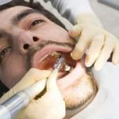 Como remover dentes de ouro