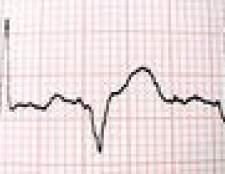 Como calcular a freqüência cardíaca de repouso