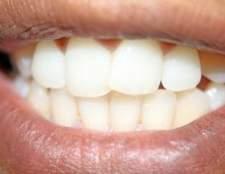 Como proteger as gengivas durante o clareamento dos dentes