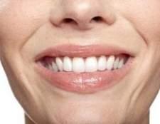 Como remover manchas de chá nos dentes